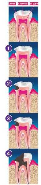 Schéma premières dents (source : UFSBD)